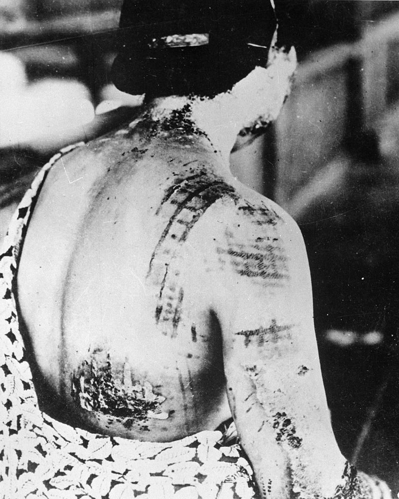 A survivor's skin burned in the pattern of her kimono