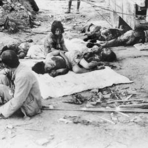 Civilian casualties at the Mitsubishi Steel Works plant (approximately 0.7 miles from ground zero) after the bombing of Hiroshima.